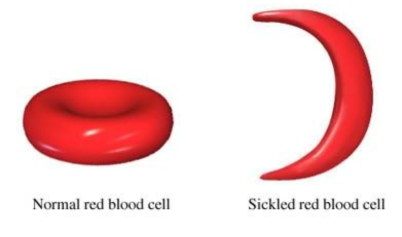 Sickle cell disease rate increasing in country – Experts